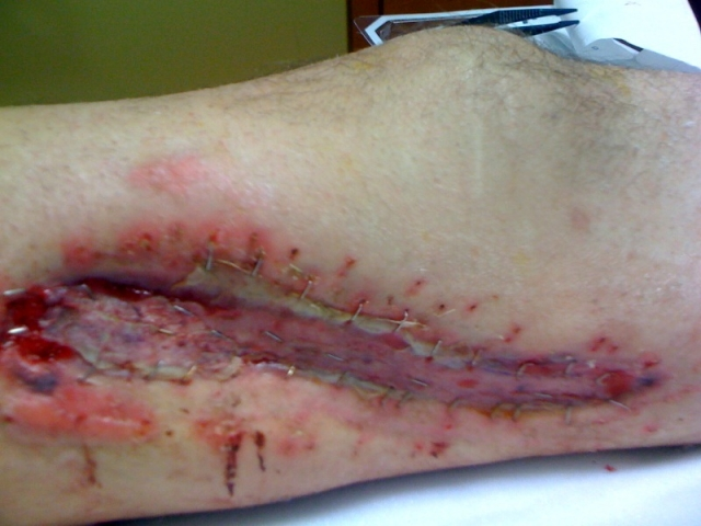 Inside of right leg after skin graft