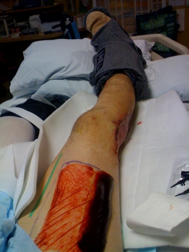 His thigh was the donor site for the skin graft